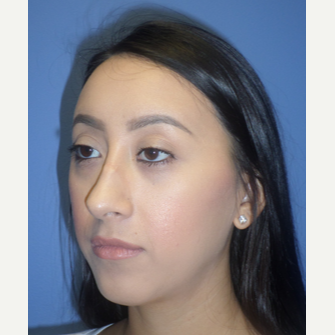 25-34 year old woman treated with Rhinoplasty before 3764667