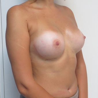 25-34 year old woman treated with Breast Augmentation after 3695148