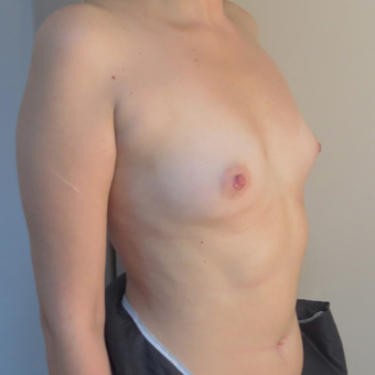 25-34 year old woman treated with Breast Augmentation before 3695148