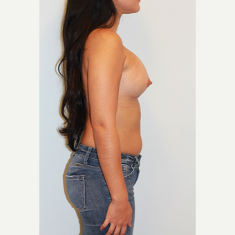 18-24 year old woman treated with Breast Augmentation after 3412533