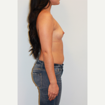 18-24 year old woman treated with Breast Augmentation before 3412533