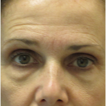 45-54 year old woman treated with Eyelid Surgery before 3802446