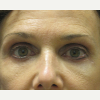 45-54 year old woman treated with Eyelid Surgery after 3802446