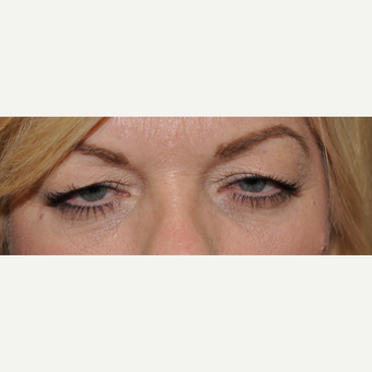45-54 year old woman treated with Eyelid Surgery before 3508737