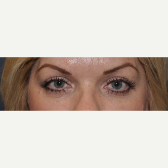 45-54 year old woman treated with Eyelid Surgery after 3508737