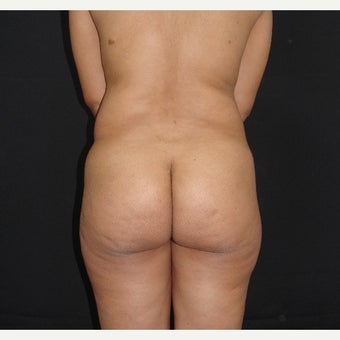 25-34 year old woman treated with Liposculpture before 2017995