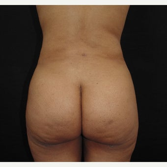 25-34 year old woman treated with Liposculpture after 2017995