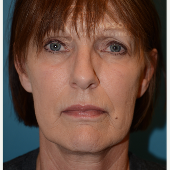 55-64 year old woman treated with MACS Facelift before 3664206