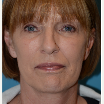 55-64 year old woman treated with MACS Facelift after 3664206