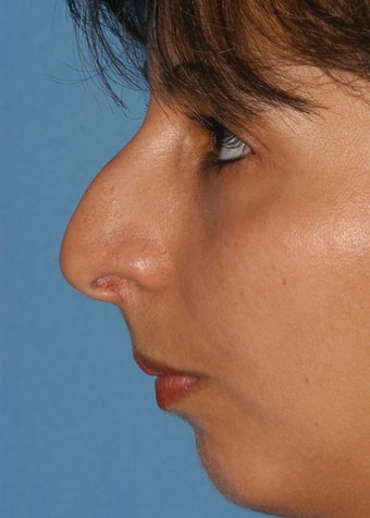 25-34 year old woman treated with Rhinoplasty before 2106936