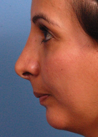 25-34 year old woman treated with Rhinoplasty after 2106936