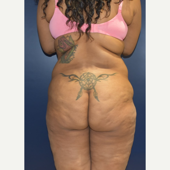 25-34 year old woman treated with Brazilian Butt Lift before 3734059