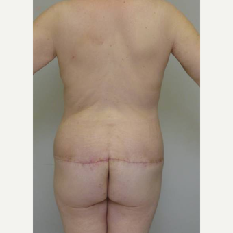 35-44 year old woman treated with Body Lift after 3402364