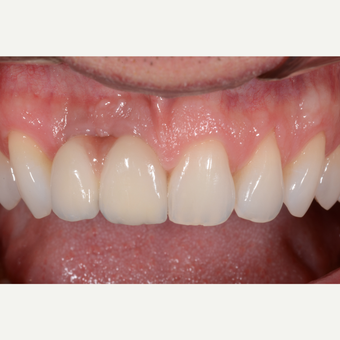 25-34 year old man treated with Dental Implants for the replacement of front teeth. after 3650166