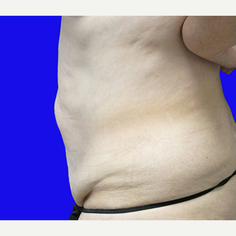 45-54 year old woman treated with Tummy Tuck before 3519917
