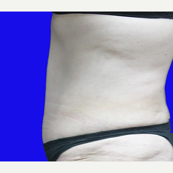 45-54 year old woman treated with Tummy Tuck after 3519917