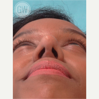 25-34 year old woman treated with Rhinoplasty and alar base reduction after 3472399