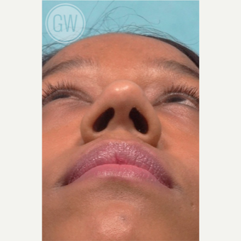 25-34 year old woman treated with Rhinoplasty and alar base reduction before 3472399