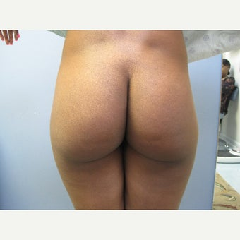 18-24 year old woman treated with Butt Implants before 1547193