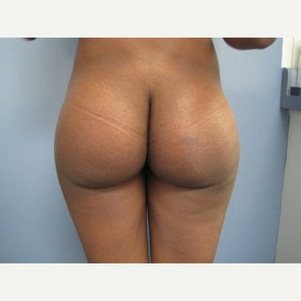 18-24 year old woman treated with Butt Implants after 1547193
