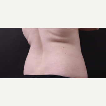 46 year old woman treated with CoolSculpting after 3168903