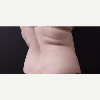 46 year old woman treated with CoolSculpting before 3168903
