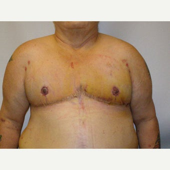 18-24 year old man treated with FTM Chest Masculinization Surgery after 2426335