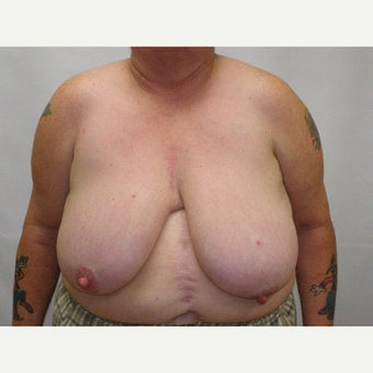 18-24 year old man treated with FTM Chest Masculinization Surgery before 2426335