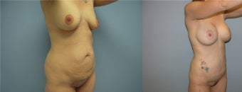 liposuction, breast augmentation, mommy makeover, tummy tuck after 521132