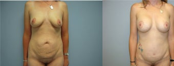 liposuction, breast augmentation, mommy makeover, tummy tuck before 521132