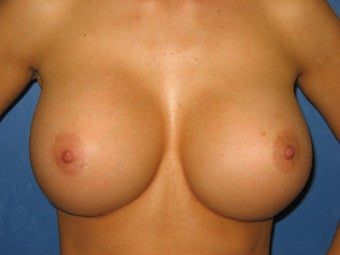 26 Year Old Breast Re-Augmentation after 1114100