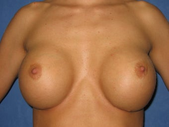 26 Year Old Breast Re-Augmentation before 1114100