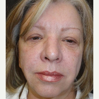 55-64 year old woman treated with Radiesse before 2636372