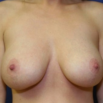 28 year old woman with a bilateral breast augmentation with a bilateral mastopexy after 2258970