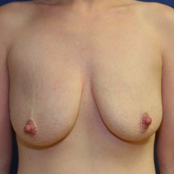 28 year old woman with a bilateral breast augmentation with a bilateral mastopexy before 2258970