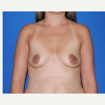 25-34 year old woman treated with Breast Augmentation before 3769774