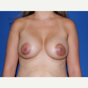 25-34 year old woman treated with Breast Augmentation after 3769774