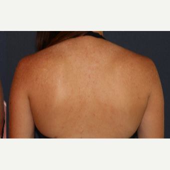 18-24 year old woman treated with Infini RF after 3230383