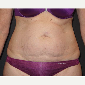 45-54 year old woman treated with Tummy Tuck before 3458172