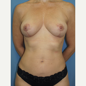 41 year old woman treated with Breast Fat Transfer and Breast Lift after 3585772