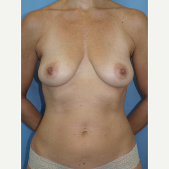 41 year old woman treated with Breast Fat Transfer and Breast Lift before 3585772