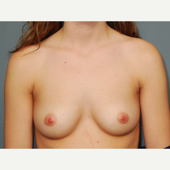 26 y/o Inframammary Sub Muscular Breast Augmentation before 3065988