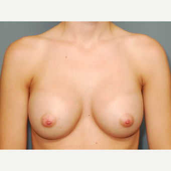 26 y/o Inframammary Sub Muscular Breast Augmentation after 3065988