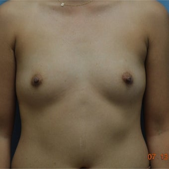 25-34 year old woman treated with Breast Augmentation before 2634505
