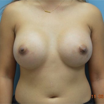 25-34 year old woman treated with Breast Augmentation after 2634505