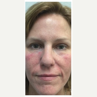 35-44 year old woman treated with Wrinkle Treatment after 2894157