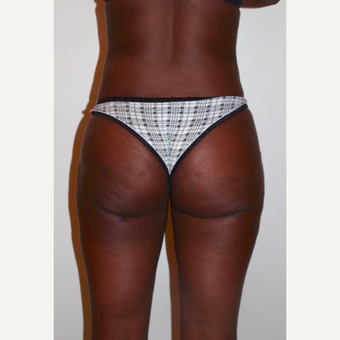 35-44 year old woman treated with Brazilian Butt Lift after 3403715