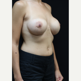 25 year old woman treated with Saline Breast Implants after 3383230
