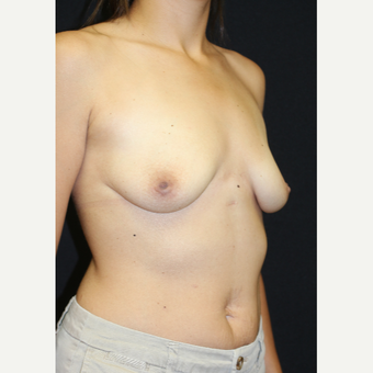 25 year old woman treated with Saline Breast Implants before 3383230
