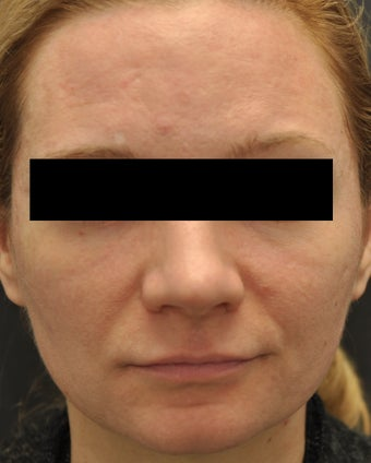 Facial Aging Grooves before 955243